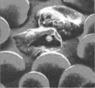 Заболевания человека вызванные простейшими дизентерия лямблиоз  Рис 1 Малярийный плазмодий разрушает клетки крови