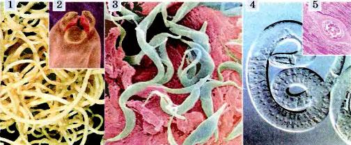нематоды паразиты человека таблица